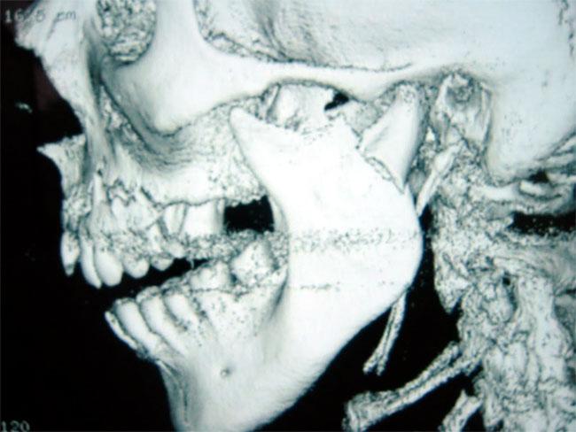 traumatologie-face3